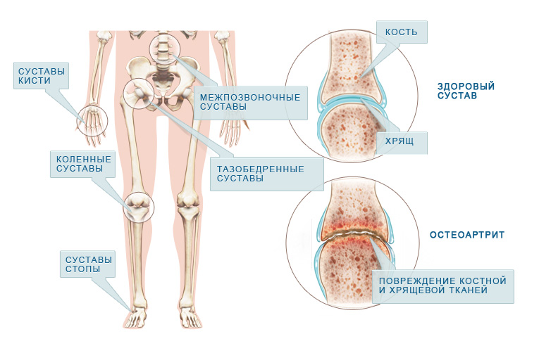 лечение при ревматоидном артрите суставов