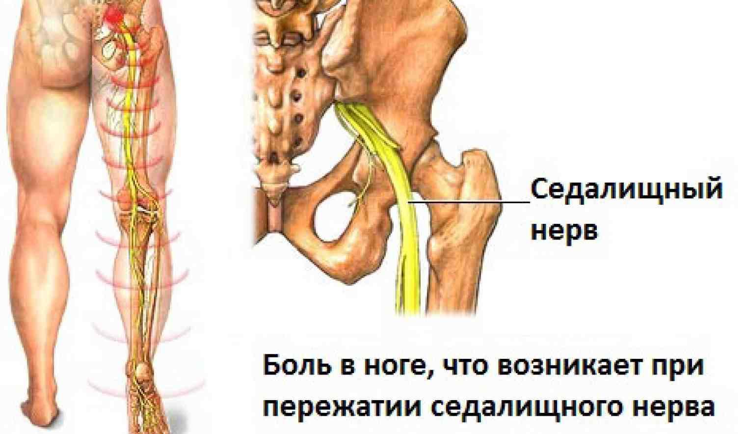 Защемило нерв в пояснице отдает в ногу как лечить